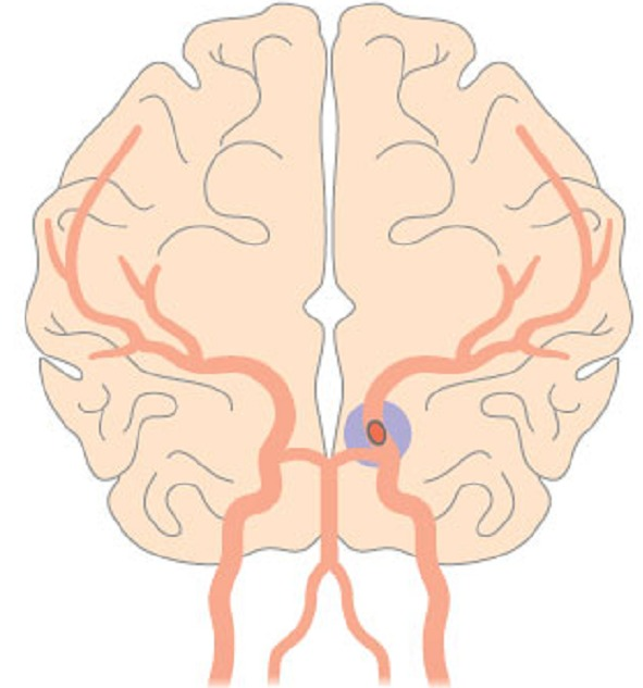 心原性脳塞栓症
